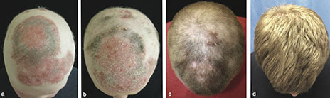 Arthritis drug grows hair in bald patient