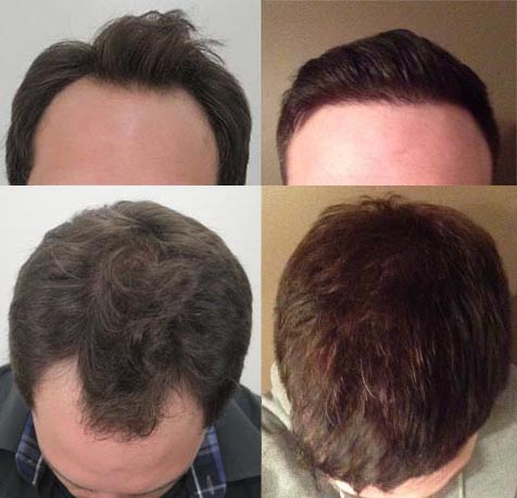 mr_predictable's hair transplant after 9 months