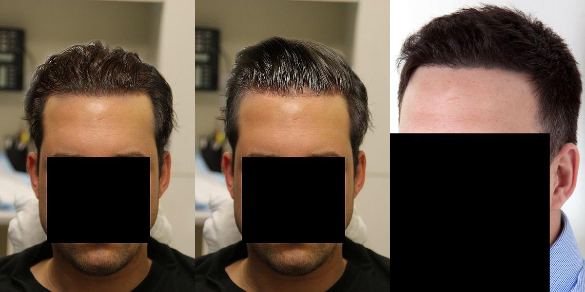 mr_predictable made some dream hairlines - his Rahal results are better, he says