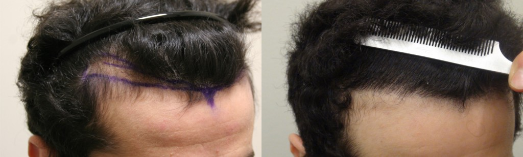 Before and after photo of follicular unit extraction on Toronto patient 'Omar'