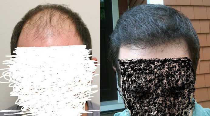 Cant decides' pictures to back up his Rahal hair transplant review