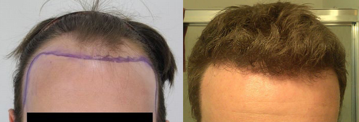 jbny displays before and after photos from his hair restoration review