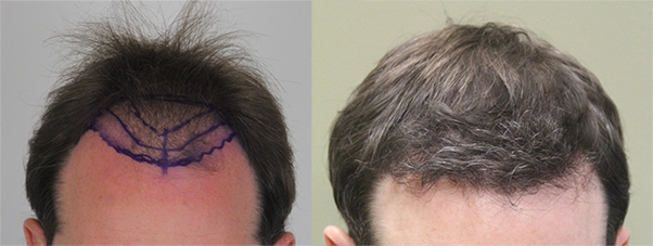 Before and after hair transplant - Toronto professional 'Greg's Rahal FUT result