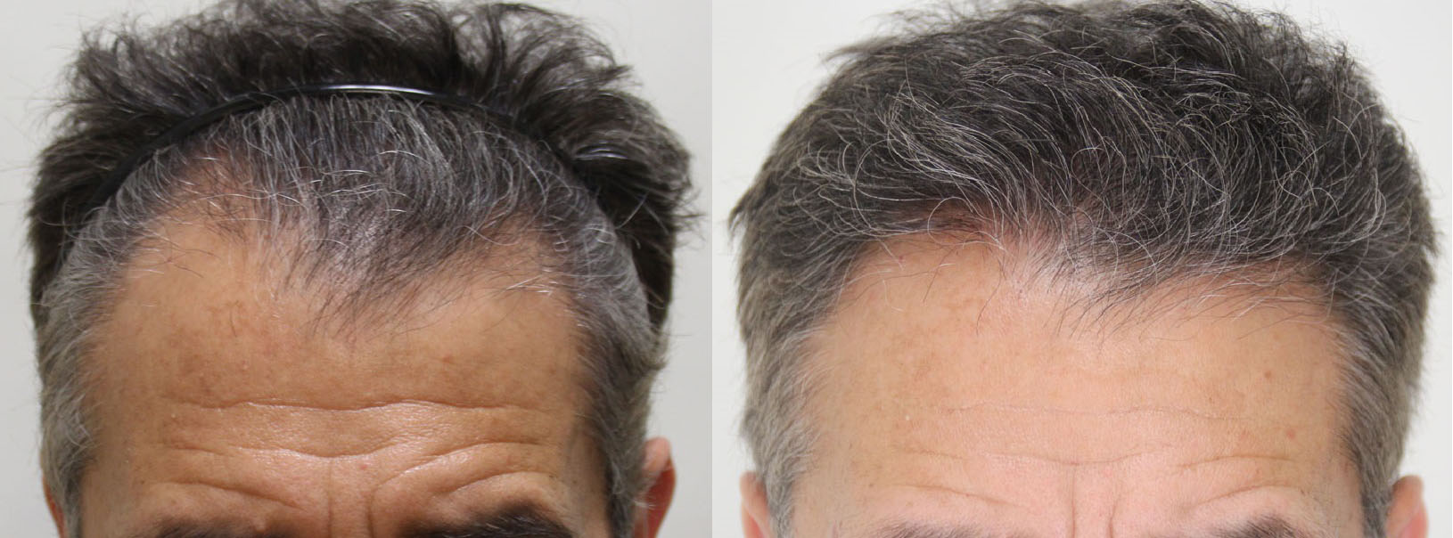 2808 graft Rahal FUE™ on a Norwood 5, 6 months post-op
